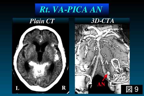 右椎骨動脈-後下小脳動脈分岐部動脈瘤症例 単純CTにてクモ膜下出血が認められる。後方から観察した